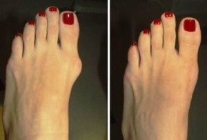 bunion foot pain Dallas