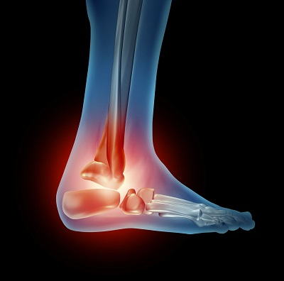 ankle pain podiatrist dallas