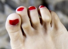 hammertoe foot pain