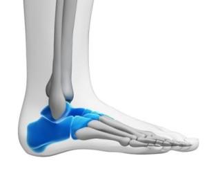tarsal tunnel ankle pain