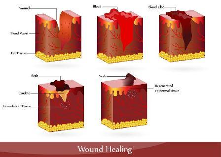 wound care podiatrist dallas