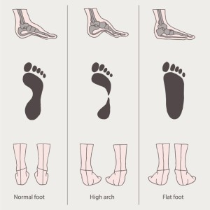 foot arches, flat feet dallas