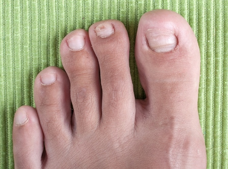 Ingrown Toenails