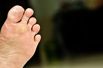 Plantar Warts Advanced Foot Ankle Care Specialists