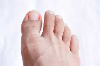 Ingrown Toenal Treatment and Prevention in Dallas, TX 75206